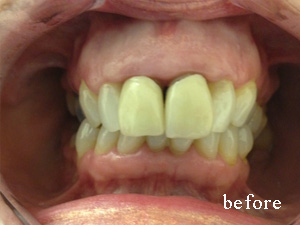 Before whitening venreers