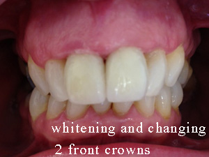 After whitening venreers