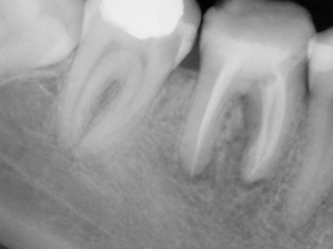 Root Canal after treatment